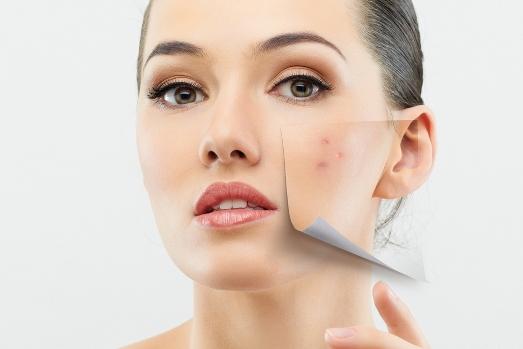 Комедоны на коже. препараты для лечение