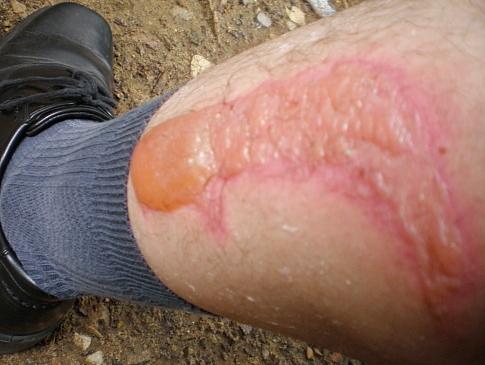 Лечение болей коленного сустава