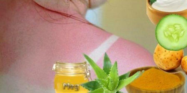 Миниатюра к статье Солнечные ожоги: чем мазать и лечить в домашних условиях