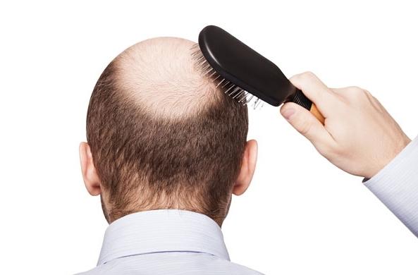 androgennaya alopeciya u zhenshhin lechenie
