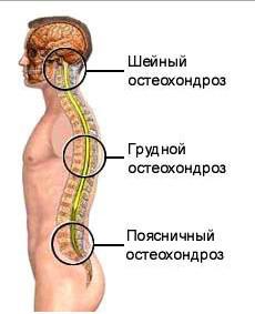 Лечение пояснично osteohondroza krestcovogo otdela позвоночника