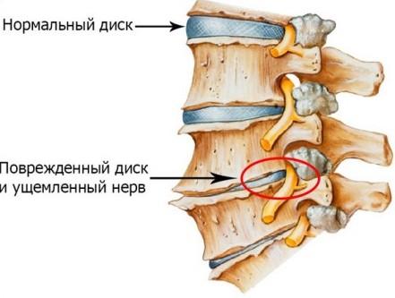 osteohondroz grudnogo otdela позвоночника симптомы Лечение